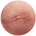 cicatrici