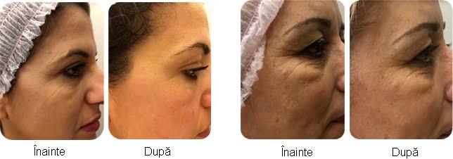 rezultate-x-skin-age