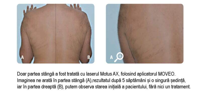 laser epilare definitiva spate motus ax