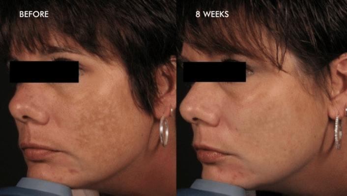before-after-melasma-rezultat-dermalinfusion