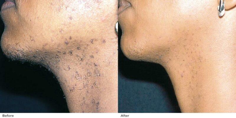Rezultate_Inainte_si_dupa Aparate Laser Epilare Definitivă Alexandrite pentru Clinici și Saloane Înfrumusețare