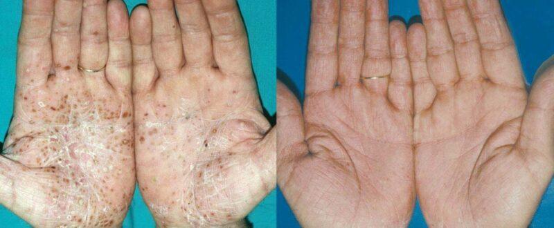 Rezultate Inainte si dupa laser Psoriasis & Vitiligo DEKA