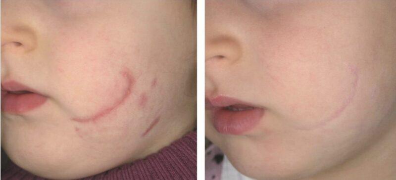 deka laser cicatrici vergeturi