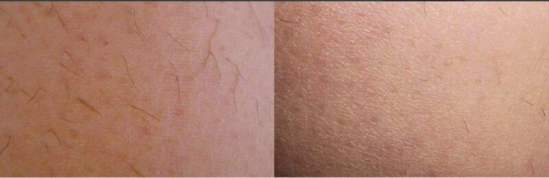 rezultat inainte si dupa aparate laser epilare definitiva